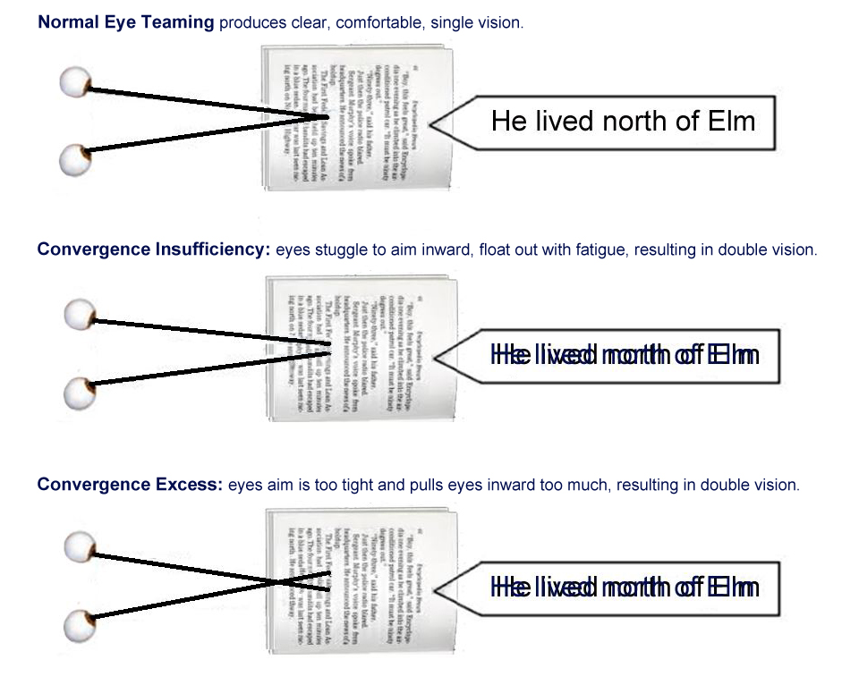 eye teaming example convergence insufficiency convergency excess binocular vision