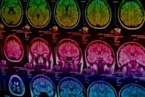 brain scan image vision therapy and brain injury