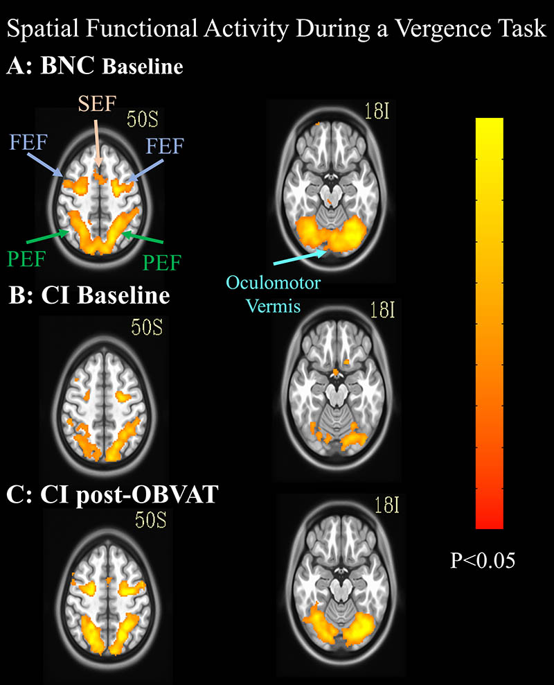 mri brain scans showing changes after vision therapy